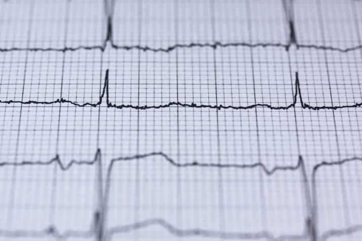 Heart Monitor, Health, Wellness, Heart Attack, Aging, Disease, Hypertension, Health Management